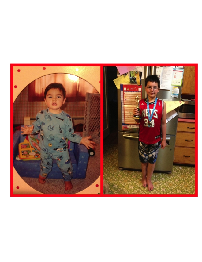 Nicholas at 18 months old pre surgery and at almost 10