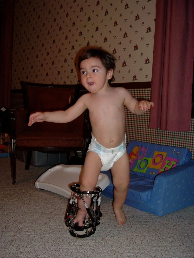 Nicholas' baby fixator (taylor spacial frame about a month after surgery March 2005