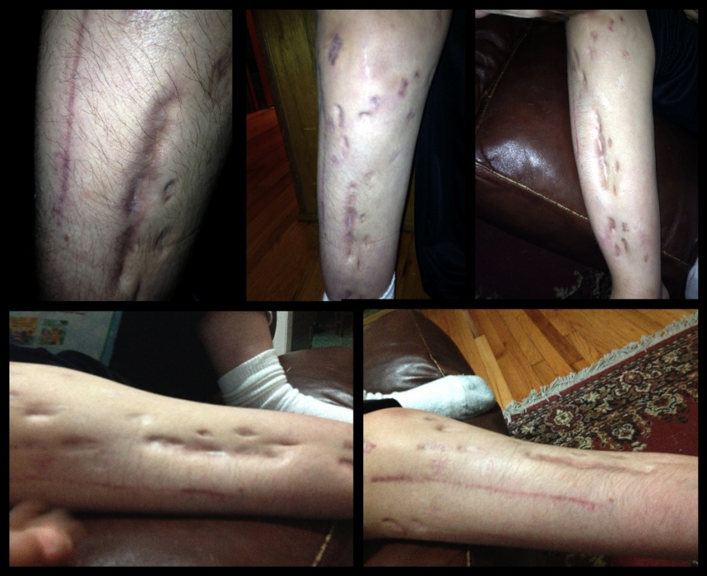 Nick is proud the scars left behind after 11 surgeries!