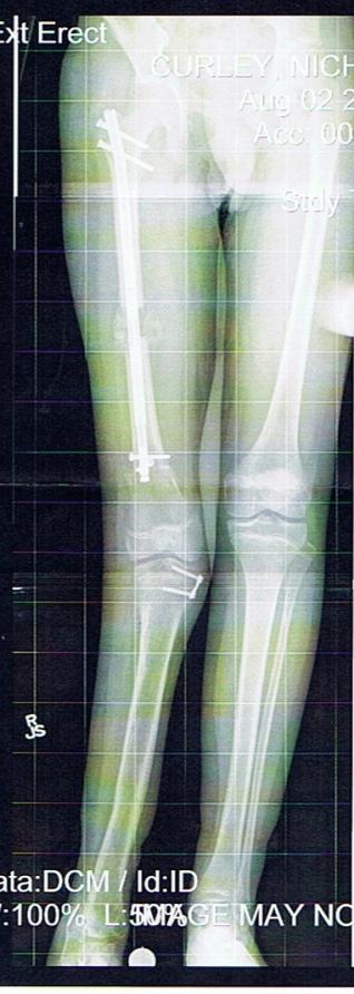 N.C.Legs